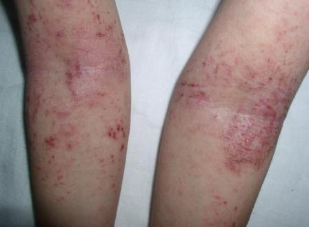 аллергия на рис у взрослых
