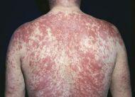 Атопический дерматит,тяжелая аллергическая реакция.