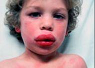 Тяжелая аллергическая реакция на лекарства.