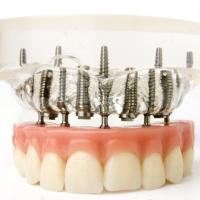 Стоматологи проведут благотворительную акцию