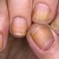 Онихолизис: отслоение ногтевой пластины