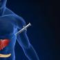 Разработан новый метод лечения диабета 1 типа