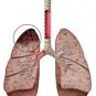 Короткий курс лечения туберкулеза не оправдал себя