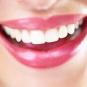 Арт-виниры и люминиры – красота улыбки без жертв