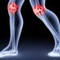 Воспаление коленного сустава: причины и лечение