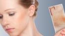 Атопический дерматит: ежедневный уход