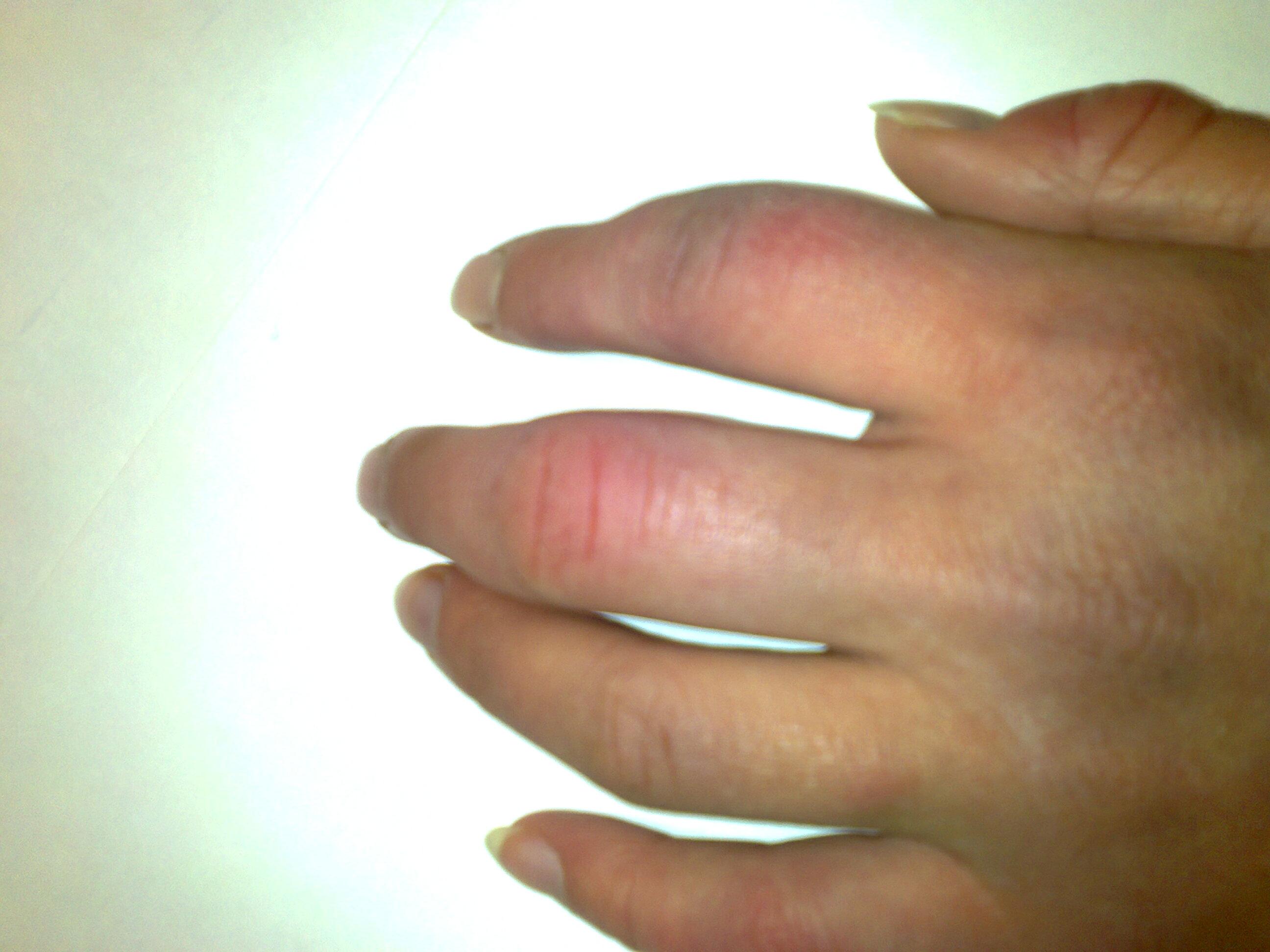 Опухла рука как лечить в домашних условиях 457