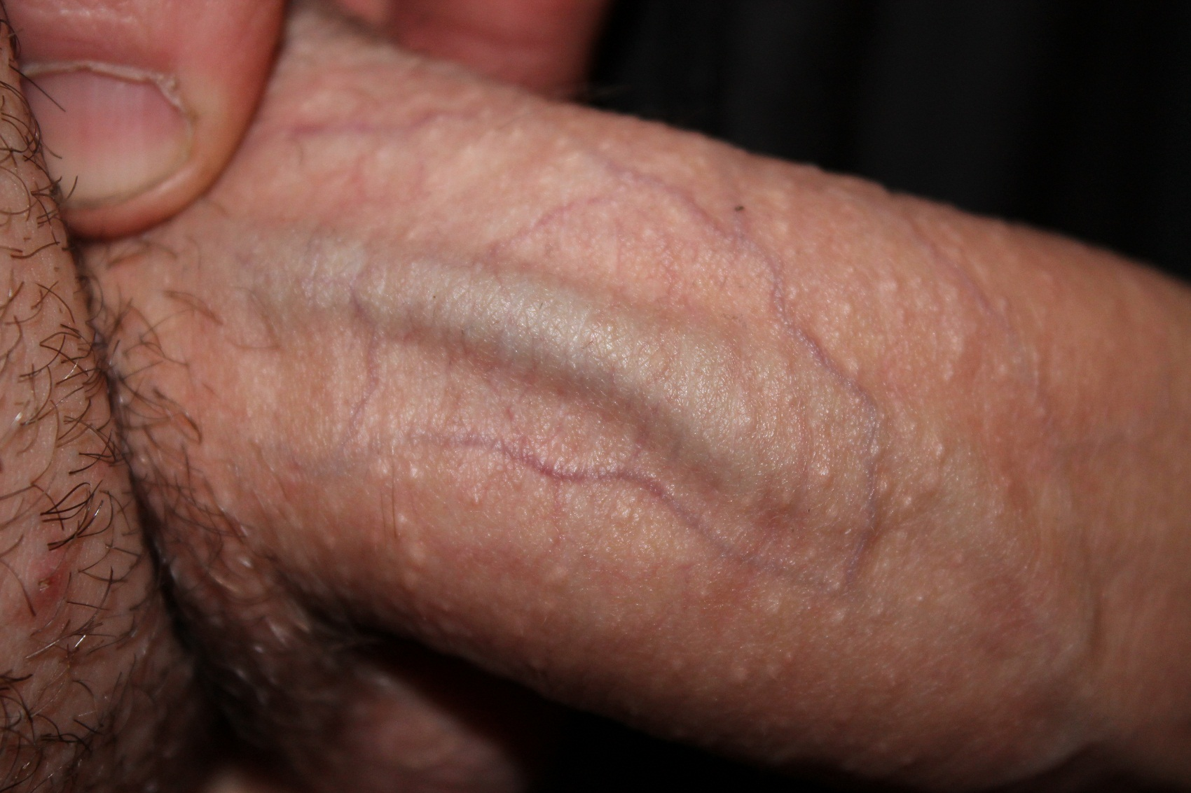 genitalniy-gerpes-na-polovom-chlene