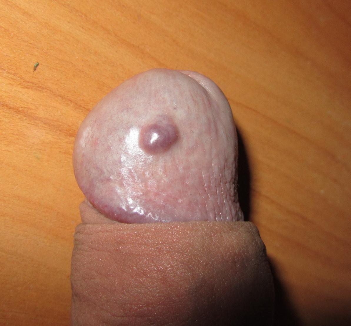 Комплексное лечение остроконечных кондилом