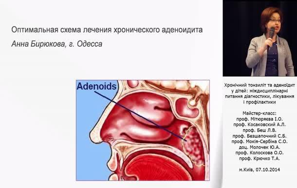 Аденоидит - Схема лечения