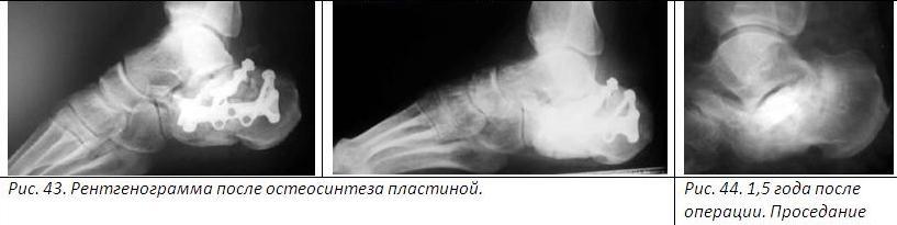 нога опухла до колена жжение ноги больно наступать покраснение ноги