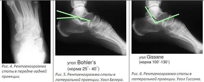 Почему болит косточка на щиколотке ноги сбоку с внешней стороны фото