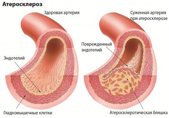 Атеросклероз: что нужно знать о болезни в любом возрасте?