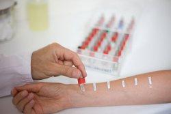 скарификационные тесты на аллергию что означает отрицательный