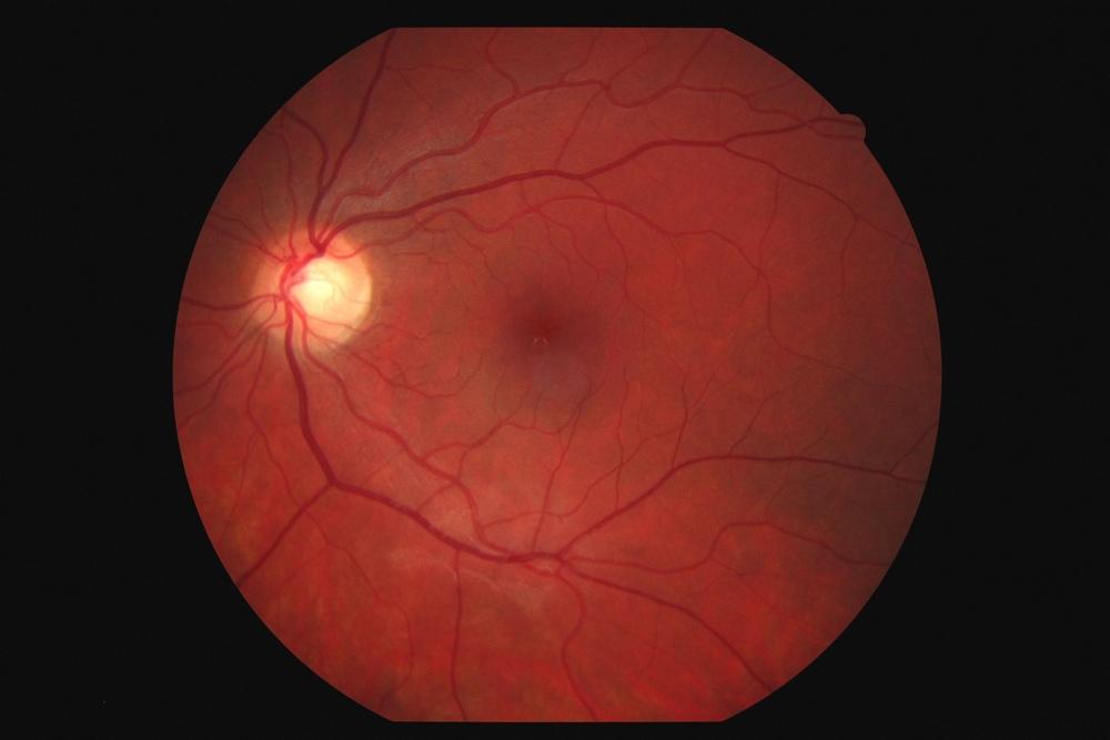Глазное дно что показывает на осмотре как проверяют