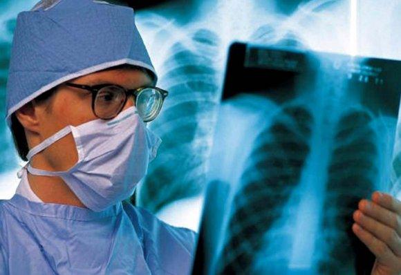 что делать если у знакомого туберкулез