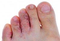 Современные мази от грибков на ногтях ног можно использовать при.