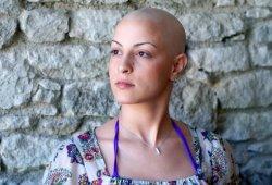 Способы устранения выпадения волос ютуб