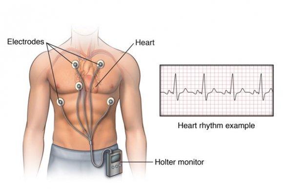 Может ли из-за шейного остеохондроза меняться голос
