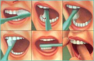 Проведите чистку жевательных поверхностей коренных зубов