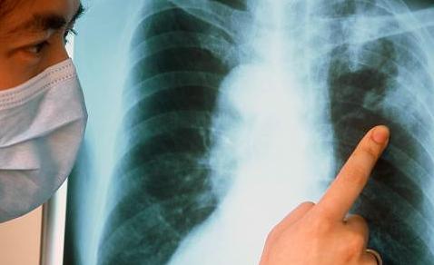 ВОЗ сделала неутешительный прогноз по туберкулезу