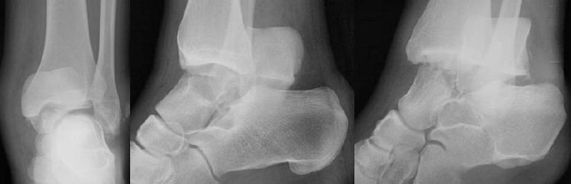 Переломы костей переднего отдела стопы - симптомы