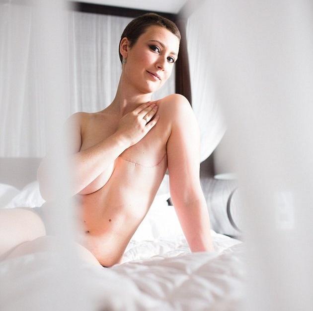 Фото удаленной женской груди фото 785-787