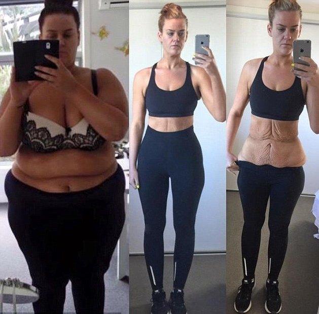 єкстремальное похудение