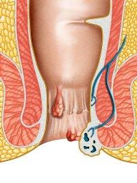 Сиденье для унитаза для лечения наружного геморроя
