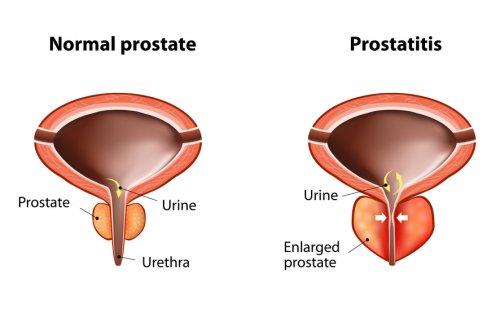 Лечение простаты физиопроцедурами