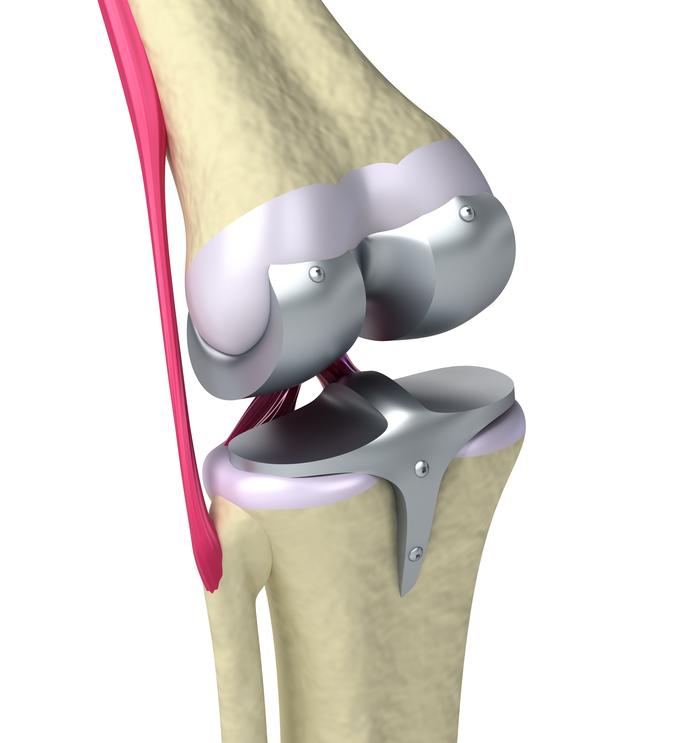как выглядит замена сустава коленного сустава