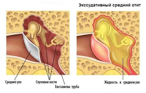 Надувание шарика носом помогает вылечить отит