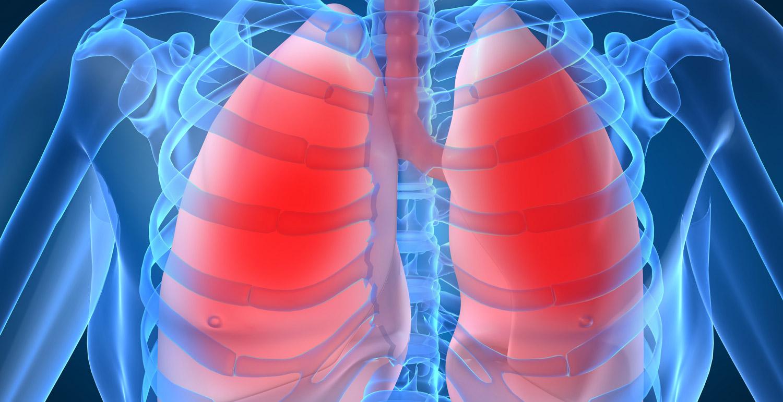 Пневмония народная медицина 14 фотография
