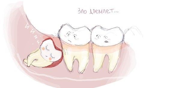 зуб мудрости неприятный запах изо рта