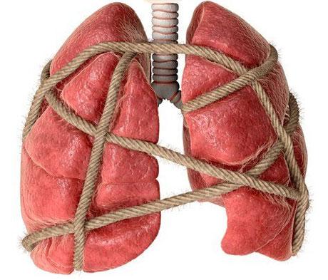 Создан новый препарат от устойчивого туберкулеза