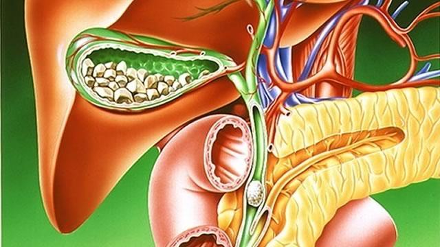Еще одна болезнь поджелудочной железы - панкреатит (панкреа
