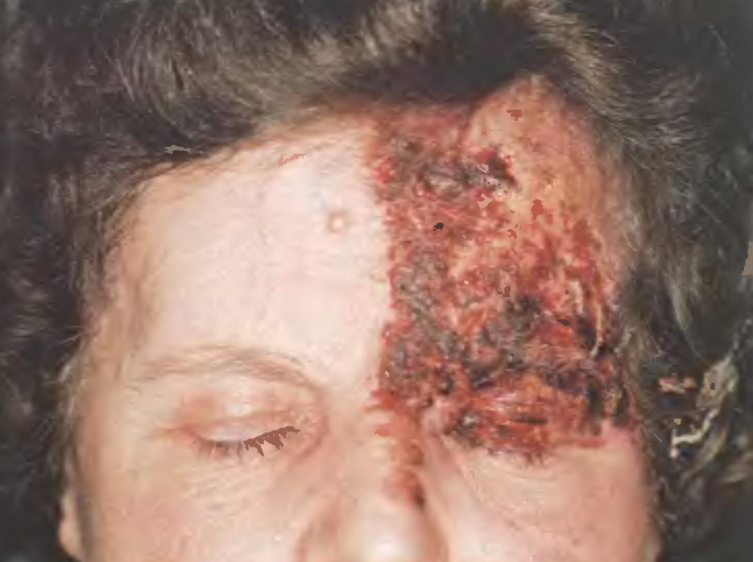 Полирадикулоневропатическая острая демиелинизирующая Гийена-Барре фото