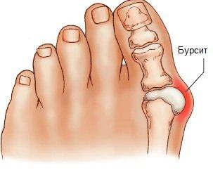 Почему сводит сустав большого пальца на ноге при плава связочно-суставной барьер