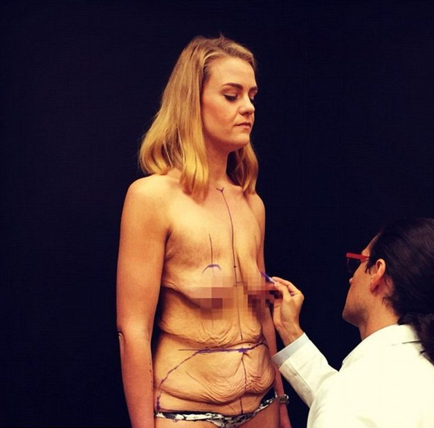 операция по удалению кожи