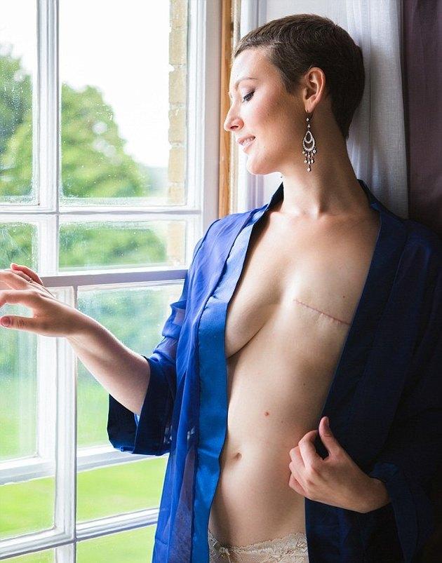 Фото удаленной женской груди фото 785-768