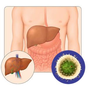 Препарат от аллергии поможет лечить гепатит С