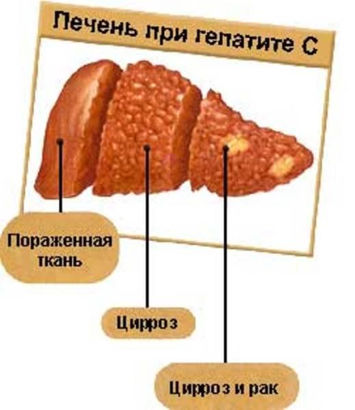 3 млн. украинцев больны гепатитом С