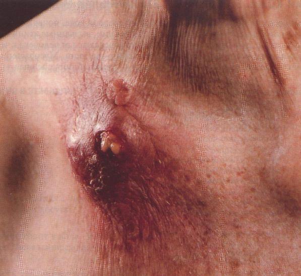 Туберкулид фото
