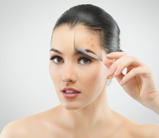 Лечебные очищающие маски для лица