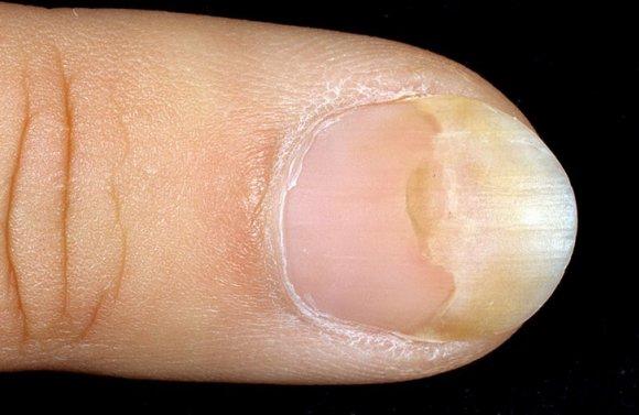 Чем лечить запущенный грибок ногтей на ногах форум