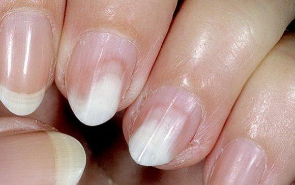 Эффективный метод борьбы с грибком ногтей