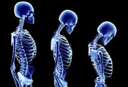 Osteoporosis Causes and Osteoporosis Symptoms.
