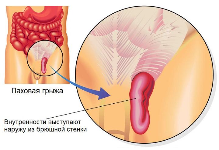 Боль в паху при раздвигании ног