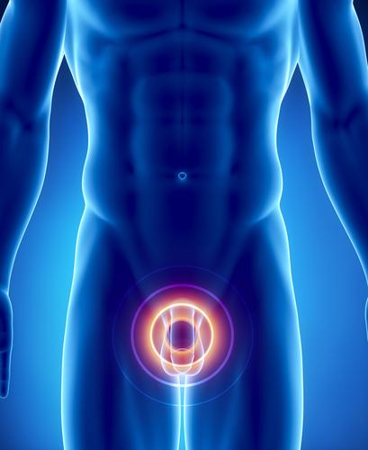 Как вести после операции аденома простата