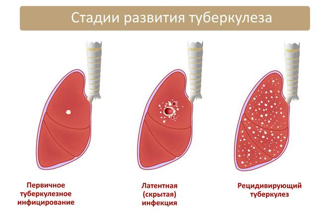 Лекарства от глаукомы помогут лечить туберкулез